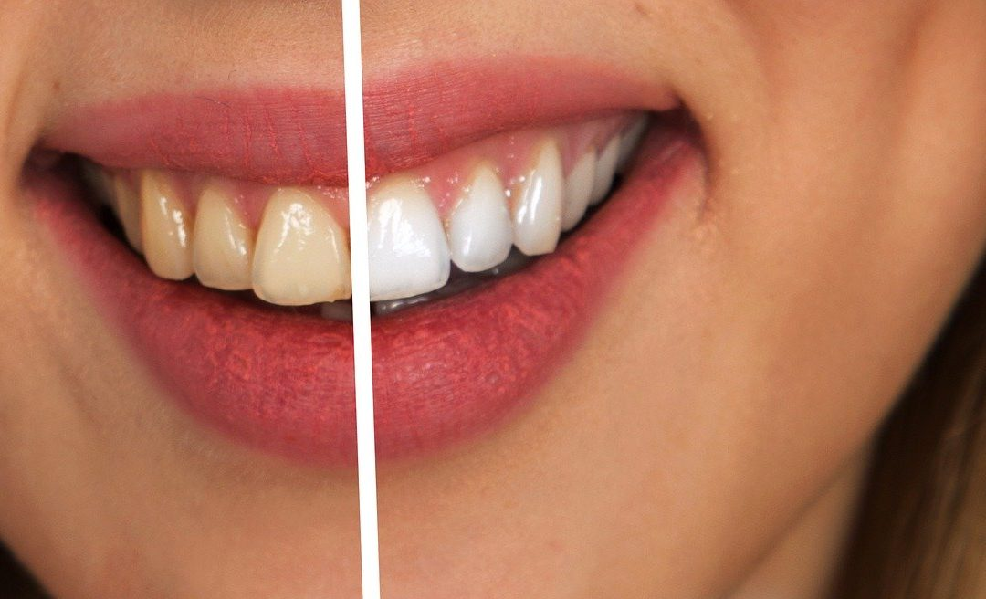 A picture that is divided in half and on one side a girl is smiling with yellow-tinted teeth and on the other side her teeth are whitened.